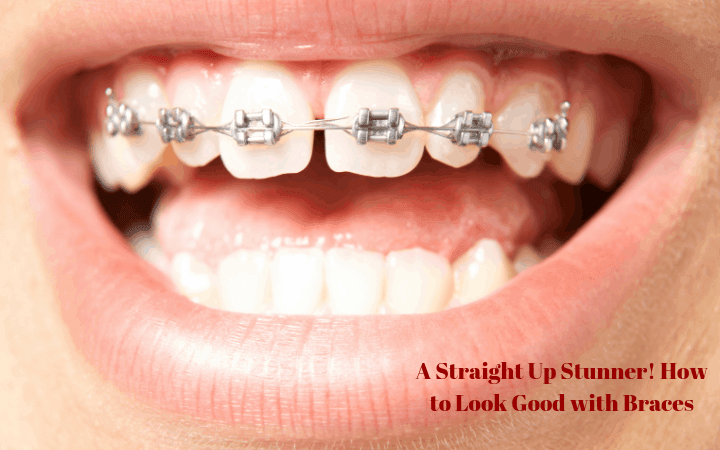A Straight Up Stunner! How to Look Good with Braces