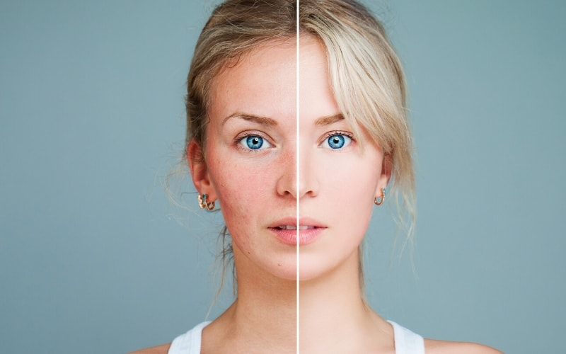 Acne is a very touchy and complicated subject for many individuals. Don't be fooled by stereotypes out there as it